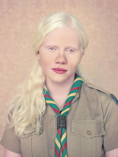 Albinism in a Girl