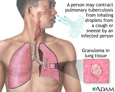 TB 10 Interesting Tuberculosis Facts