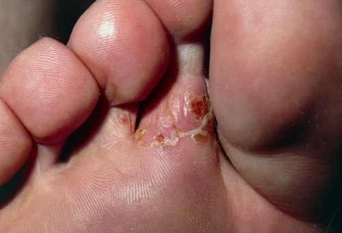 Athlete's Foot Disease