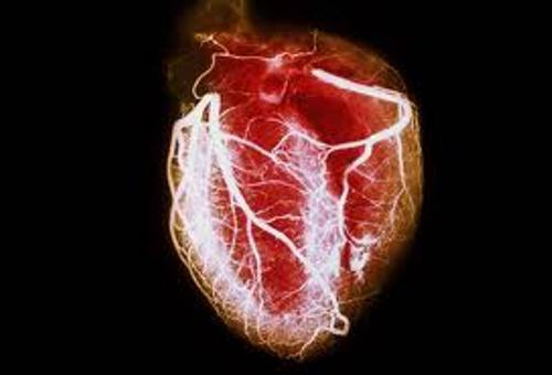 Heart Disease Pic