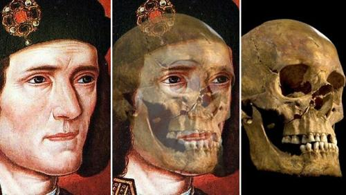 King Richard III Skull