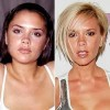 8 Interesting Plastic Surgery Facts