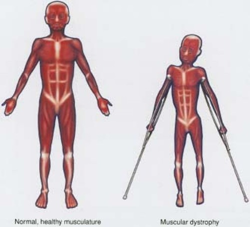 facts about muscular dystrophy