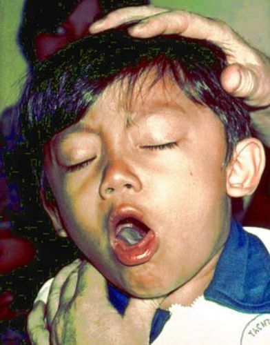 whooping cough