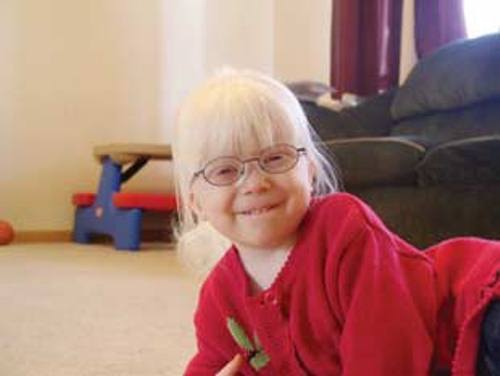 Albinism in a Child