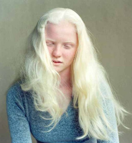 Albinism in a Woman