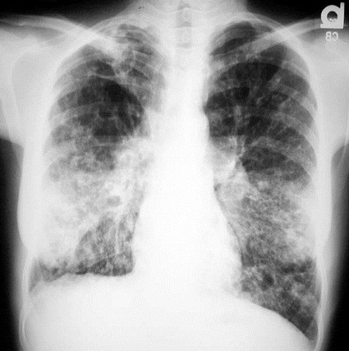Cystic Fibrosis with Lung Infection