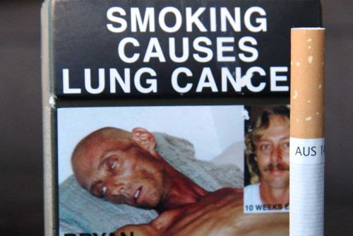 Lung Cancer Disease