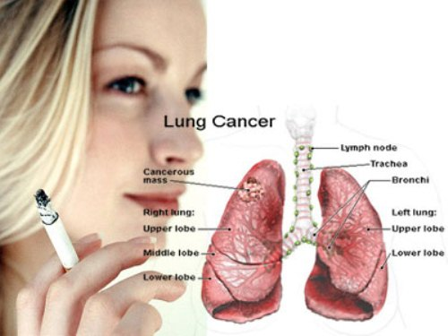 Lung Cancer and Smoking