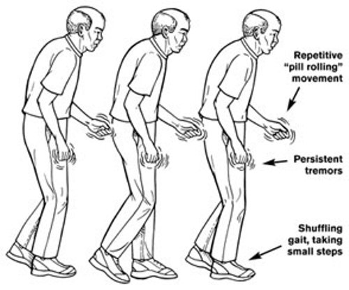 Parkinson S Disease Symptoms