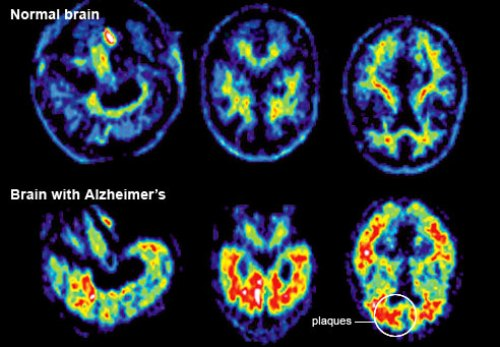 Alzheimer Disease facts
