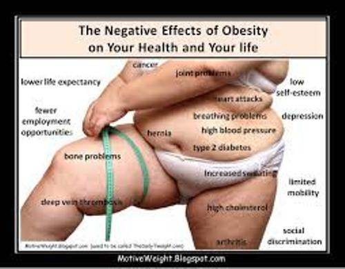 Man with Obesity