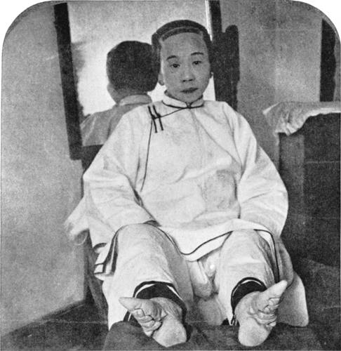 Foot Binding Facts