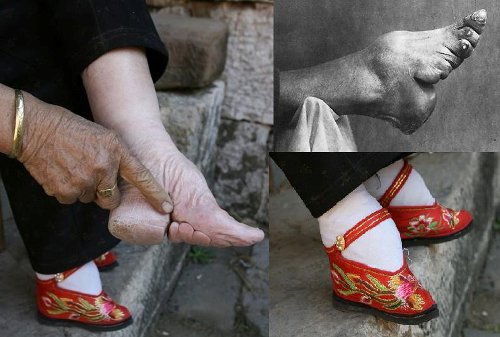 Foot Binding Pic