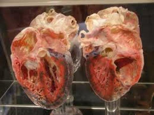 Heart Transplant Facts