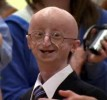 10 Interesting Progeria Facts