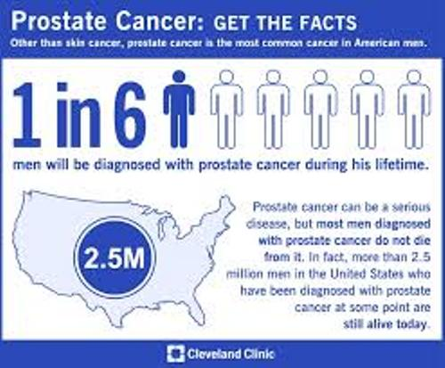 prostate cancer archives