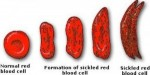 10 Interesting Sickle Cell Anemia Facts