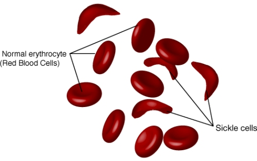 sickle cell anemia pic